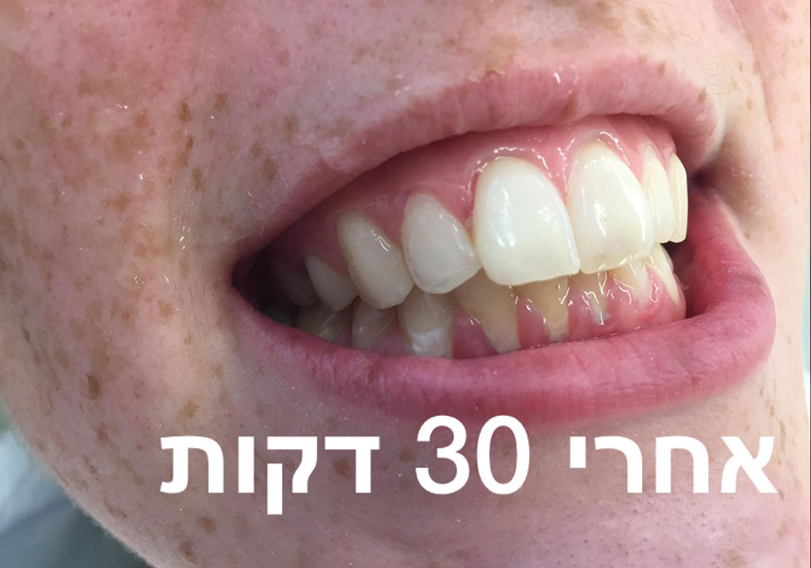 After-מ